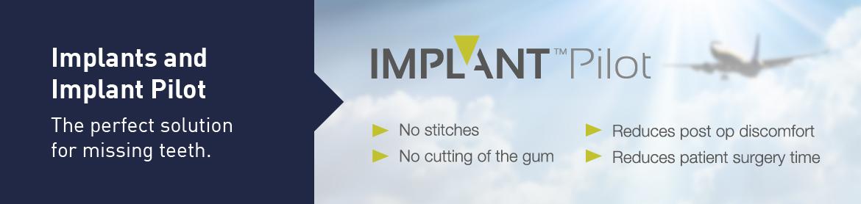 Implant Pilot Carousel