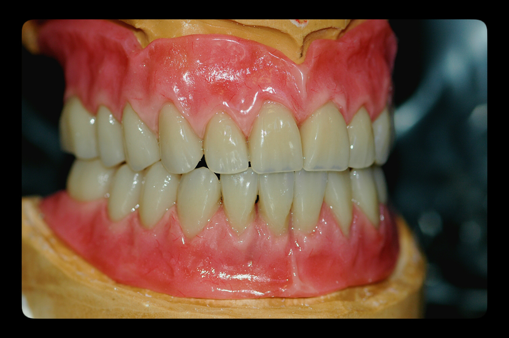 dentures1-argo-dental-Telford-Shrewsbur