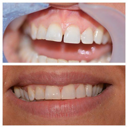 becky teeth